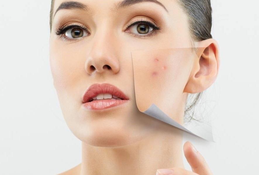 clinica-internacional-dermatologia-acne-cuidados
